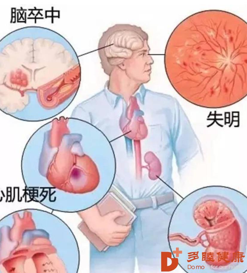 """干细胞治疗:干细胞与高血压不得不说的""""亲密关系"""""""
