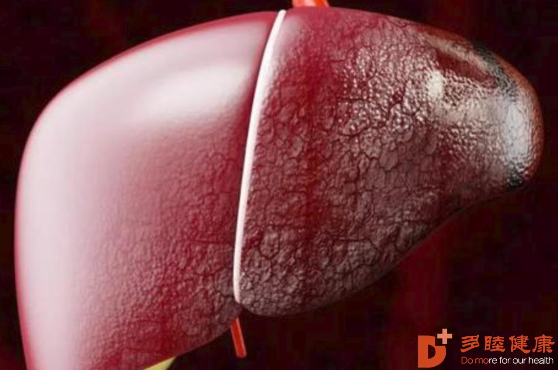 干细胞治疗:为治疗肝硬化、肝纤维化开辟新路径,4个备案项目获批