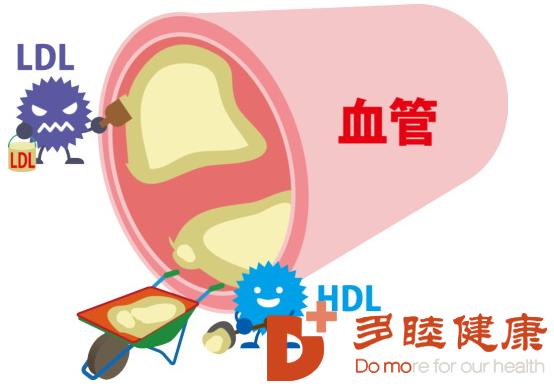 日本血液净化:身体发出这些信号,说明血脂在升高
