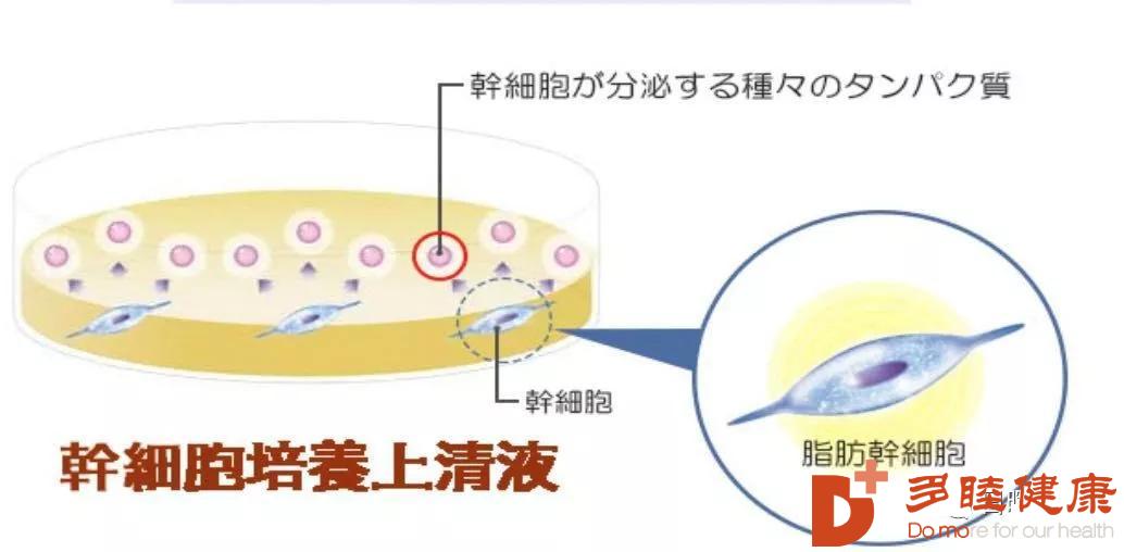 干细胞治疗:日本先端医疗干细胞疗法