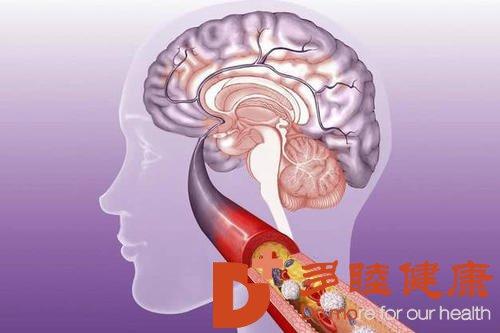 日本血液净化:脑血栓的症状及前兆