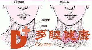 日本看病:促甲状腺激素偏高的原因有哪些?