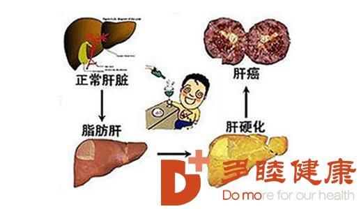 日本干细胞:肝硬化的治疗方法有哪些?