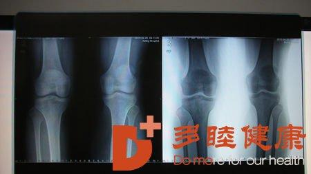 日本干细胞:膝关节镜微创术优缺点大比拼