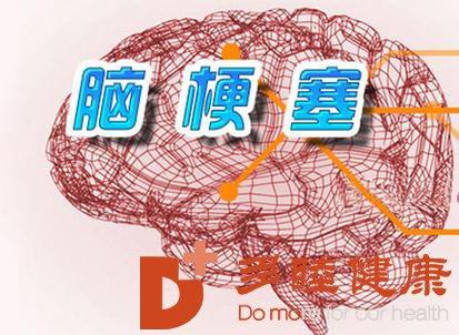 日本干细胞:脑梗死的检查项目有哪些?