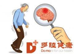 日本干细胞:如何早期发现帕金森病?