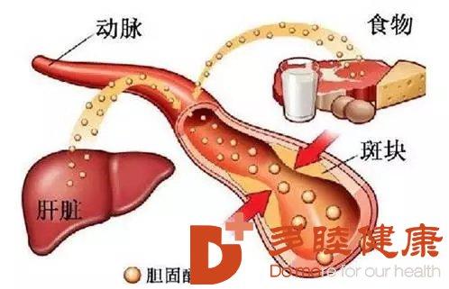 日本血液净化:引起胆固醇升高的原因有哪些?