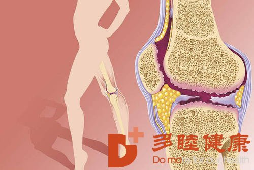日本干细胞:治疗骨关节炎,经多年验证干细胞是安全有效的