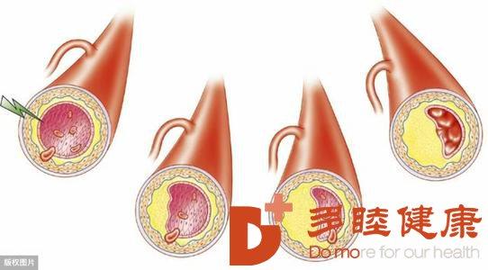 日本血液净化:动脉硬化的症状 部位不同症状不同
