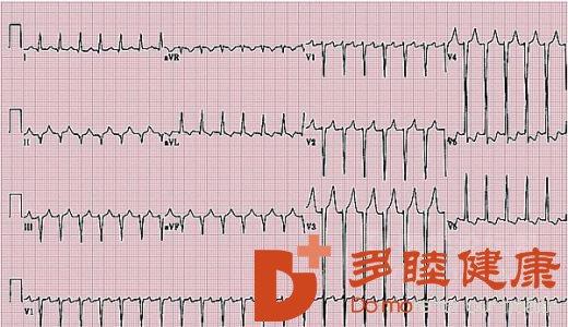 日本血液净化:听说过心梗要命 但心衰又是什么?