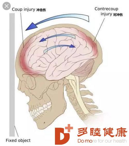 """日本看病:""""脑震荡""""会留下后遗症吗?"""