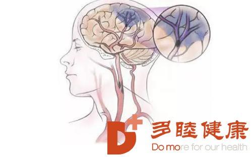 日本血液净化:脑血栓到底该怎么预防呢?赶紧看进来!