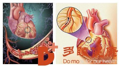 日本血液净化:心脏血管狭窄就是常说的冠心病吗?