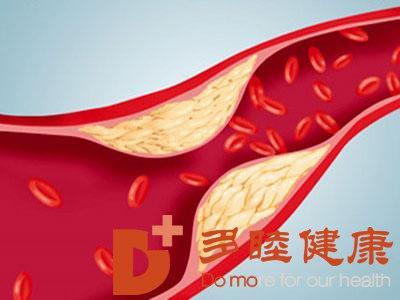 日本血液净化:脑部的动脉硬化实在是不可小觑了