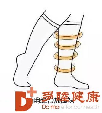 日本血液净化:慢性期下肢深静脉血栓治疗康复9注意