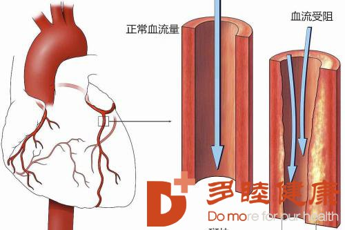 日本血液净化:预防心肌梗塞及时了解及时预防