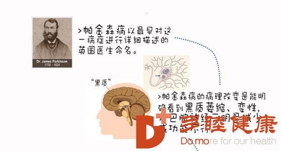 日本干细胞:帕金森病如何预防?