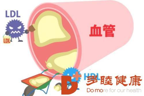 日本血液净化:高血脂的认识误区有哪些