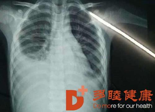 日本看病:胸腔积液早期症状是什么样的