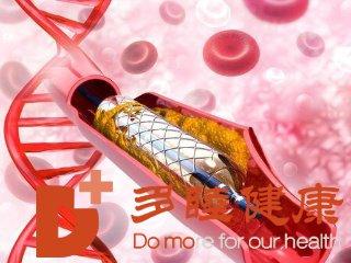 日本血液净化:血液流速快慢与静脉血栓有关系吗