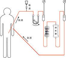日本血液净化:什么造成了心肌梗塞你应该知道的原因