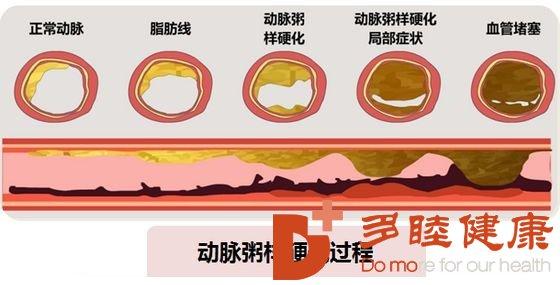 """日本血液净化:哪些人适合做颈动脉""""剥离术"""""""
