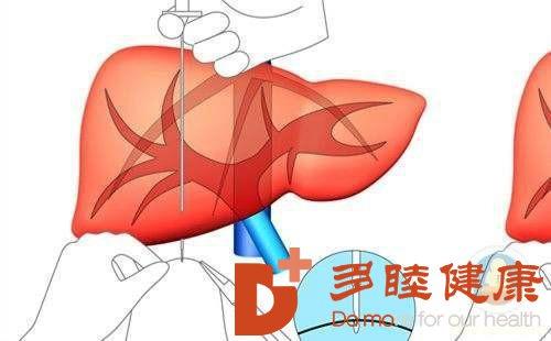 日本干细胞:肝纤维化与肝硬化有什么不同?