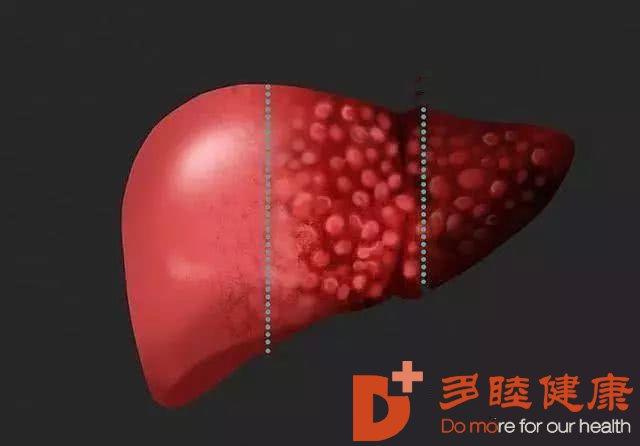 日本干细胞:肝病患者饮食的误区都有哪些?