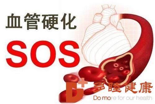 日本血液净化:从动脉粥样硬化到冠心病 再到心肌梗死
