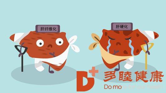 日本干细胞:肝纤维化得不到及时的治疗会引起肝硬化