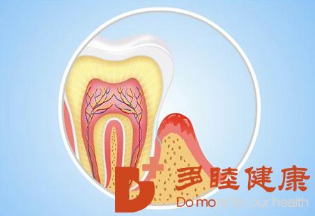 先端医疗|干细胞治疗牙龈萎缩