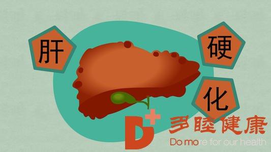 日本干细胞:盘点影响肝硬化患者寿命的几个因素