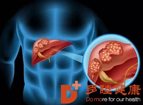日本干细胞:肝不会喊疼却要命,这些护肝方法你要知道