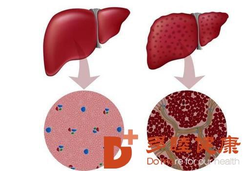 日本血液净化:肝硬化晚期6大症状,症状明显需重视