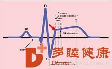 日本血液净化:心肌梗死有前兆 这5种症状需要警惕