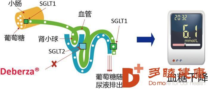 日本干细胞:为什么患了糖尿病就会消瘦?过度消瘦怎么办?
