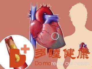 日本血液净化:动脉硬化有哪些表现 动脉硬化有哪些早期症状