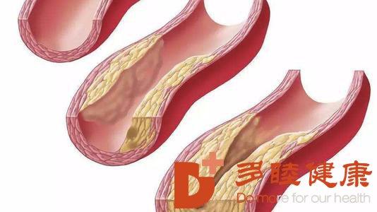 日本血液净化:怎样预防动脉硬化动脉硬化预防措施