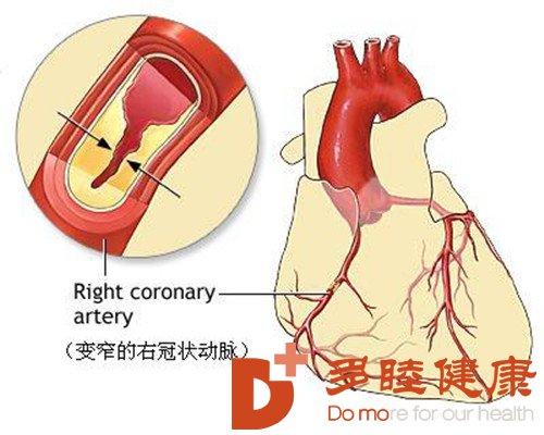 日本血液净化:动脉硬化怎样治疗 治疗动脉硬化的食物