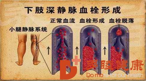 日本血液净化:静脉血栓的危害,血液净化疗法可以改善