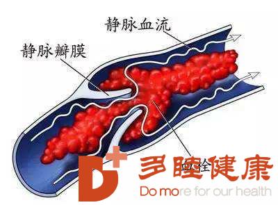日本血液净化:静脉血栓不容忽视