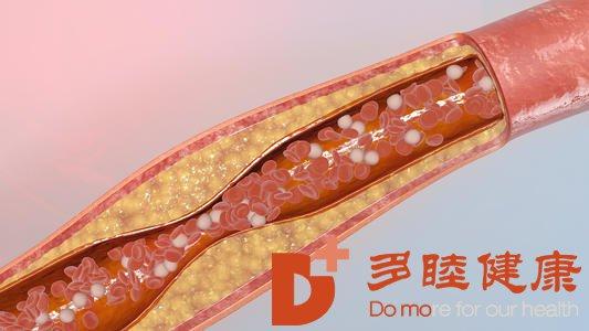日本血液净化:血管好不好,看2处就知道!
