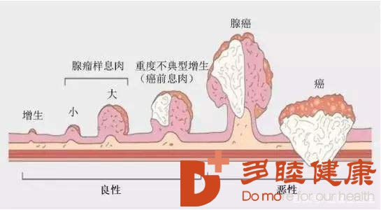 日本高端体检|日本体检查出身患大肠癌