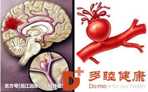 干细胞治疗给脑出血后遗症带来了希望