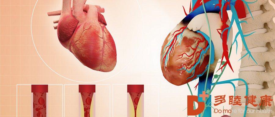 日本血液净化:动脉粥样硬化斑块形成