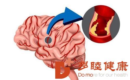 日本血液净化:老年人动脉硬化的表现有哪些?