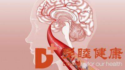 日本血液净化:动脉硬化的治疗和注意事项