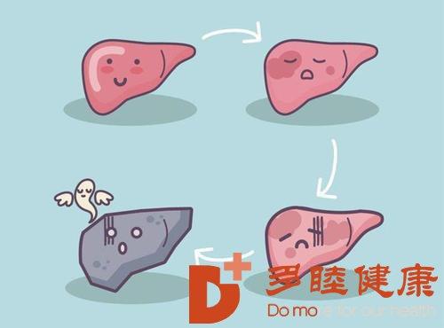 日本干细胞:肝硬化能不能治好如何治疗肝硬化