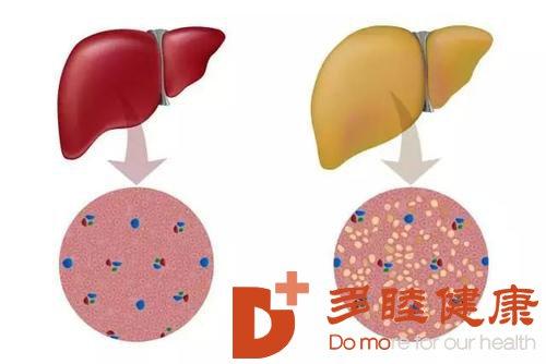 日本干细胞:为什么脂肪肝患者容易得糖尿病?如何逆转脂肪肝