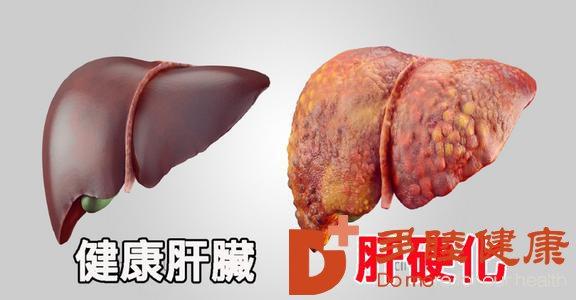 日本干细胞:预防肝硬化需要了解这些知识